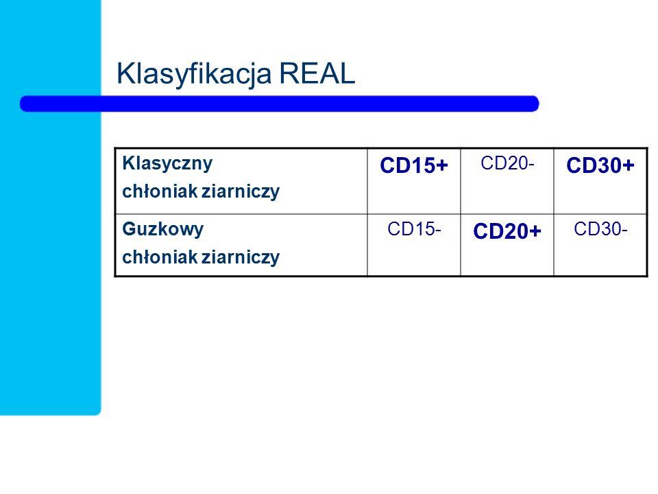 Klasyfikacja REAL CD15+ CD30+ CD20+ Klasyczny chłoniak ziarniczy CD20-