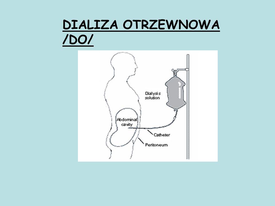 DIALIZA OTRZEWNOWA /DO/