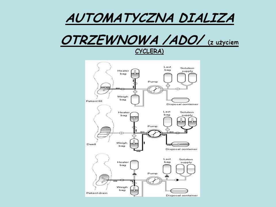 OTRZEWNOWA /ADO/ (z użyciem CYCLERA)