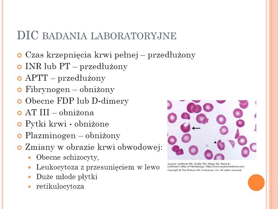 DIC badania laboratoryjne