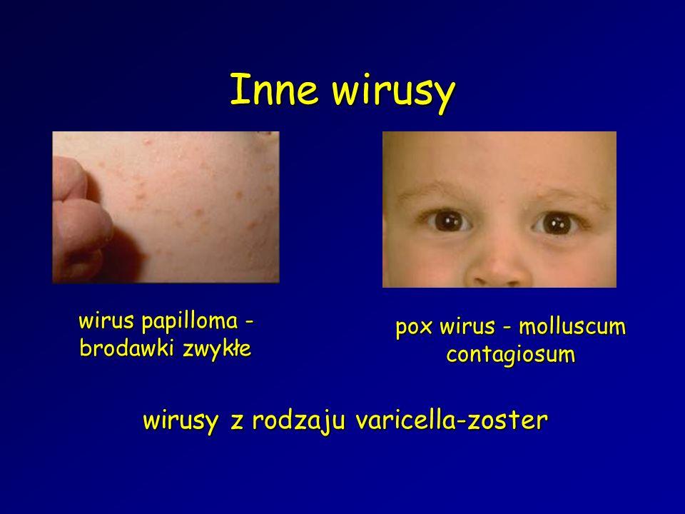 Inne wirusy wirusy z rodzaju varicella-zoster
