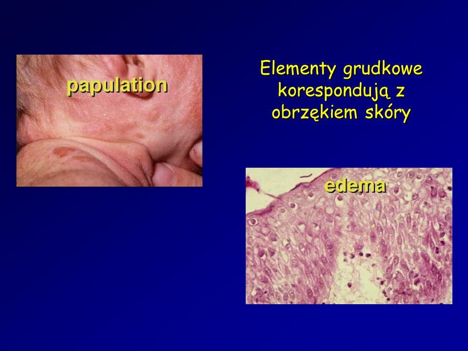 Elementy grudkowe korespondują z obrzękiem skóry