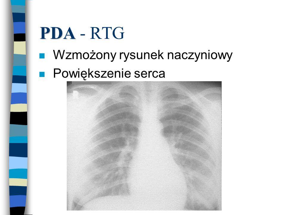 PDA - RTG Wzmożony rysunek naczyniowy Powiększenie serca