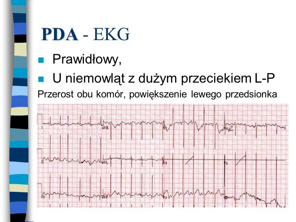 PDA - EKG Prawidłowy, U niemowląt z dużym przeciekiem L-P