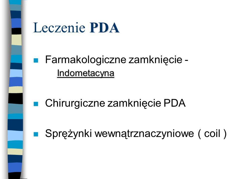 Leczenie PDA Farmakologiczne zamknięcie - Indometacyna