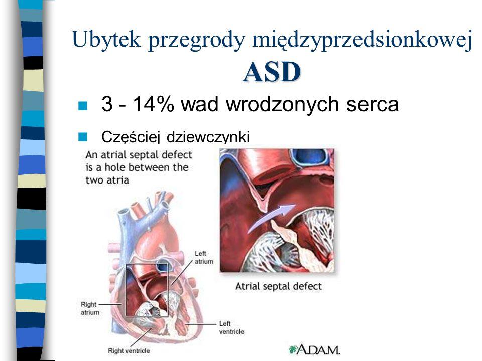 Ubytek przegrody międzyprzedsionkowej ASD