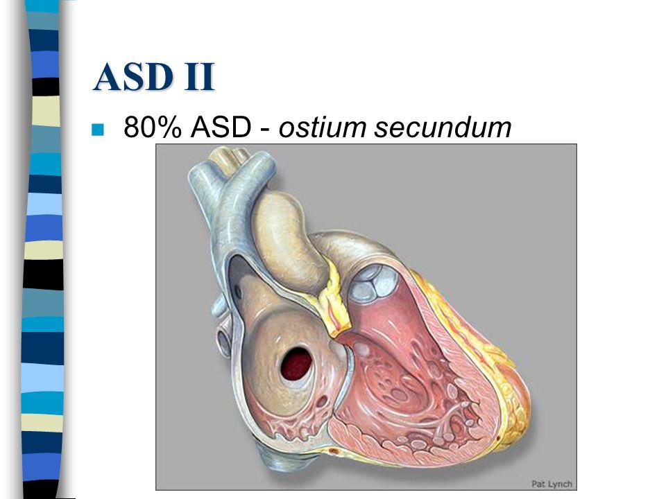 ASD II 80% ASD - ostium secundum