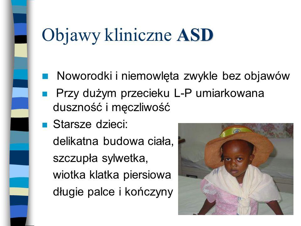 Objawy kliniczne ASD Noworodki i niemowlęta zwykle bez objawów