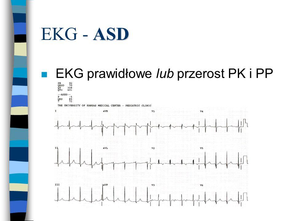 EKG - ASD EKG prawidłowe lub przerost PK i PP