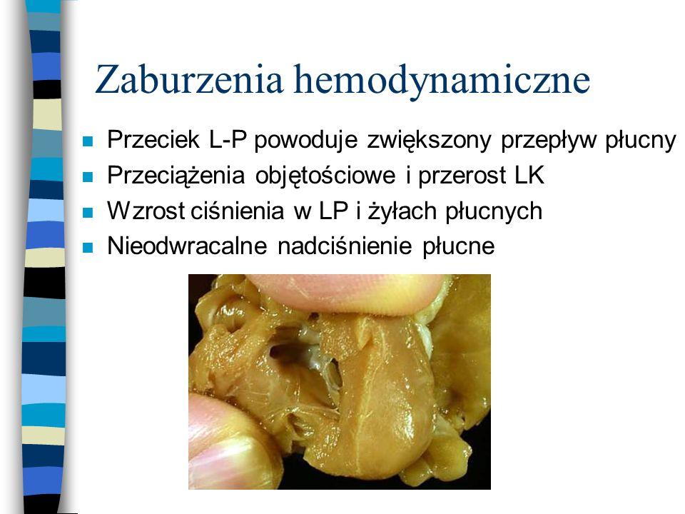 Zaburzenia hemodynamiczne
