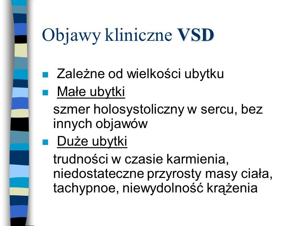 Objawy kliniczne VSD Zależne od wielkości ubytku Małe ubytki