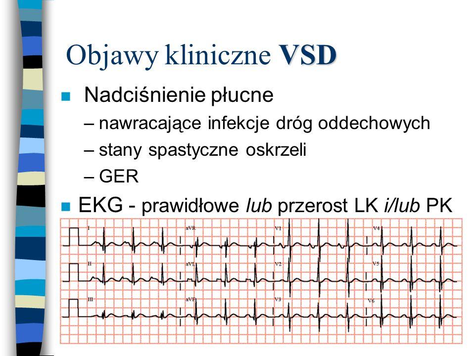 Objawy kliniczne VSD Nadciśnienie płucne