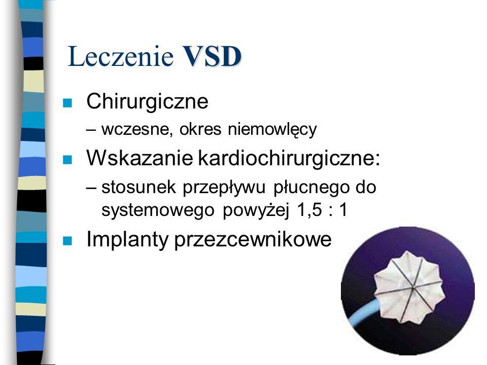Leczenie VSD Chirurgiczne Wskazanie kardiochirurgiczne: