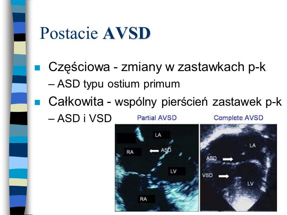 Postacie AVSD Częściowa - zmiany w zastawkach p-k