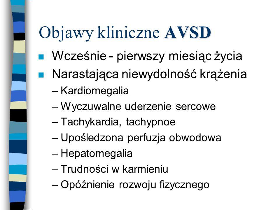 Objawy kliniczne AVSD Wcześnie - pierwszy miesiąc życia