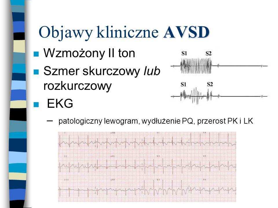 Objawy kliniczne AVSD Wzmożony II ton Szmer skurczowy lub rozkurczowy