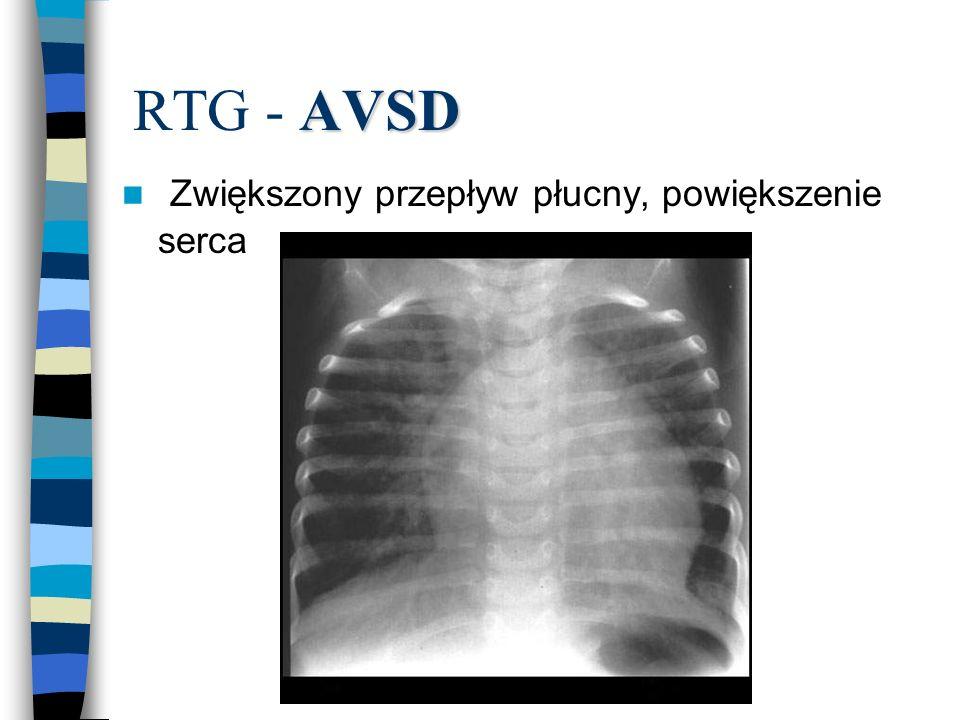RTG - AVSD Zwiększony przepływ płucny, powiększenie serca