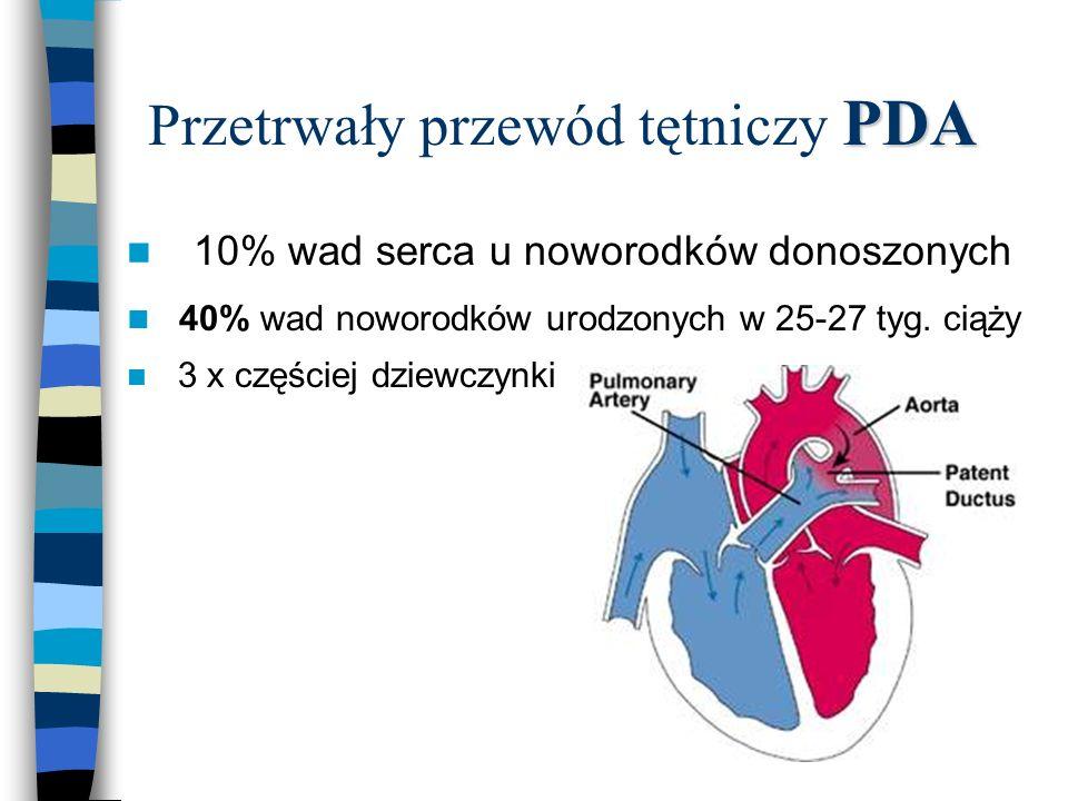 Przetrwały przewód tętniczy PDA