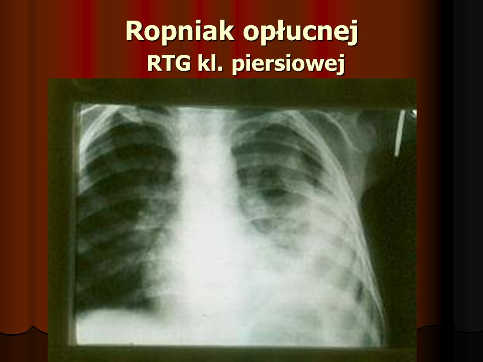 Ropniak opłucnej RTG kl. piersiowej