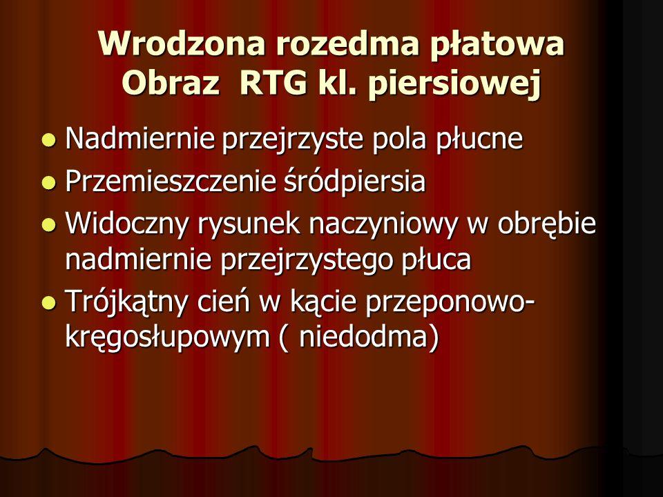 Wrodzona rozedma płatowa Obraz RTG kl. piersiowej