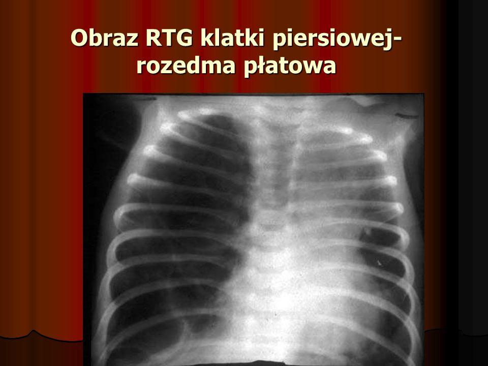 Obraz RTG klatki piersiowej- rozedma płatowa