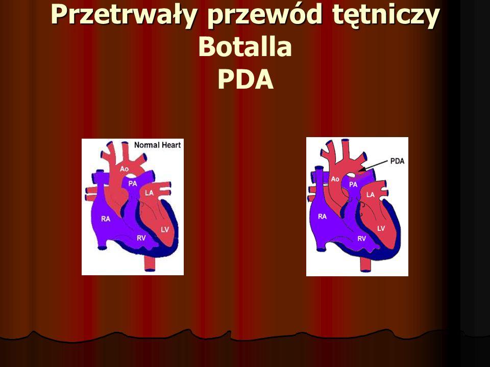 Przetrwały przewód tętniczy Botalla PDA