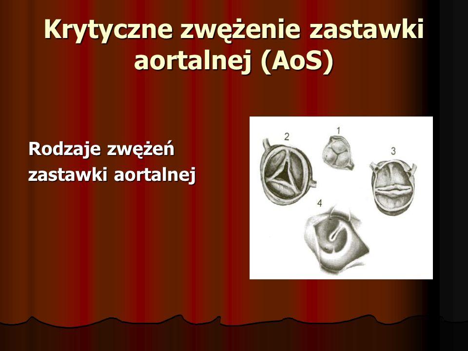 Krytyczne zwężenie zastawki aortalnej (AoS)