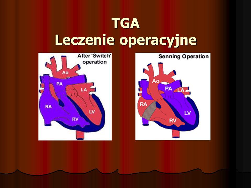 TGA Leczenie operacyjne