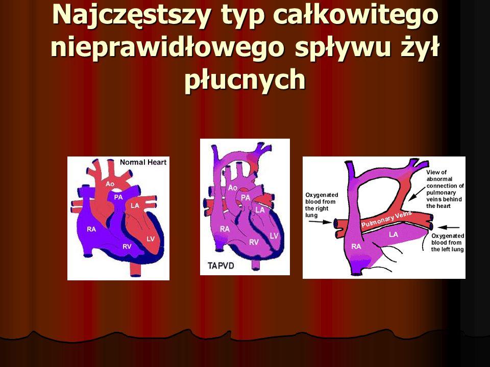 Najczęstszy typ całkowitego nieprawidłowego spływu żył płucnych