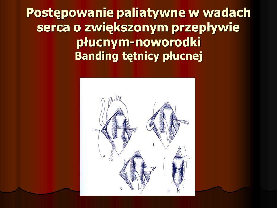 Postępowanie paliatywne w wadach serca o zwiększonym przepływie płucnym-noworodki Banding tętnicy płucnej