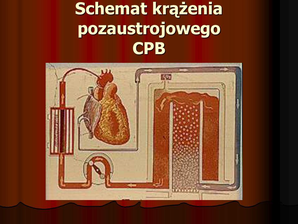 Schemat krążenia pozaustrojowego CPB