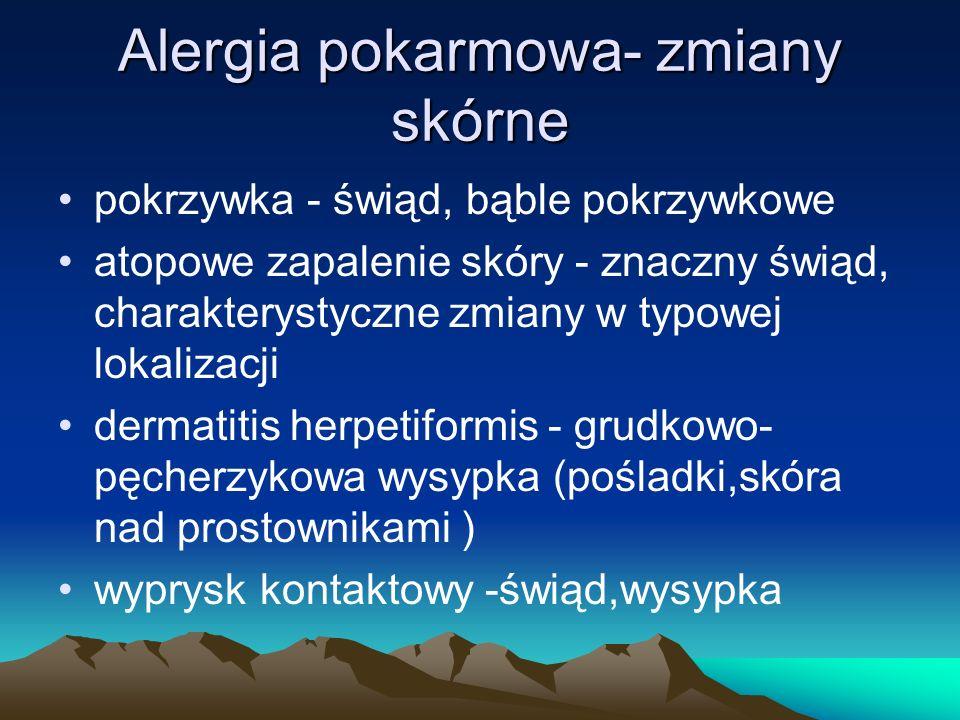 Alergia pokarmowa- zmiany skórne