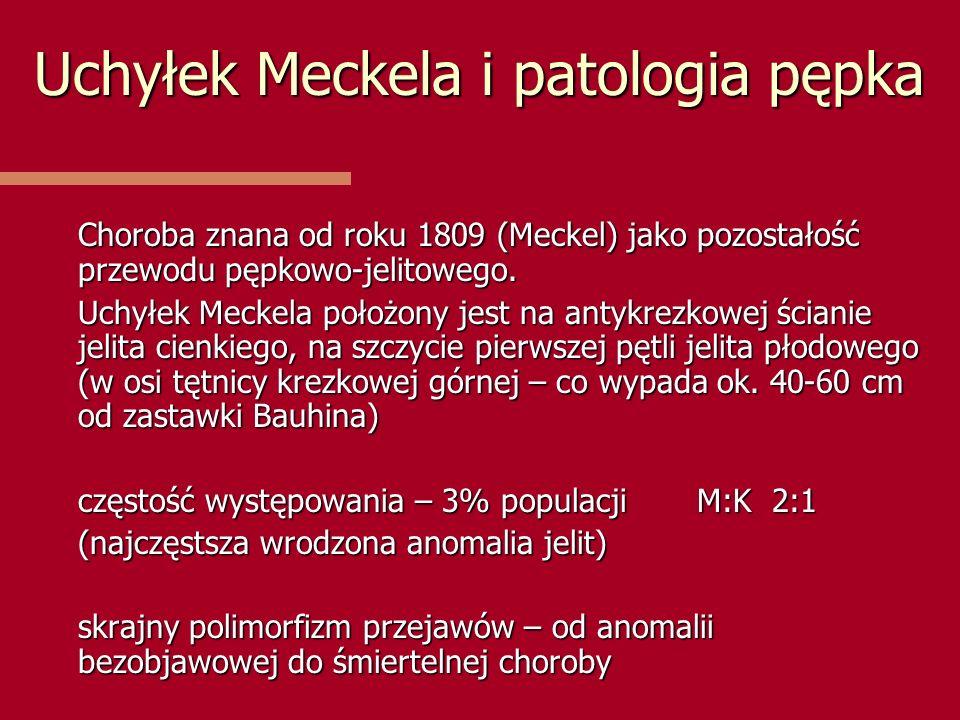 Uchyłek Meckela i patologia pępka