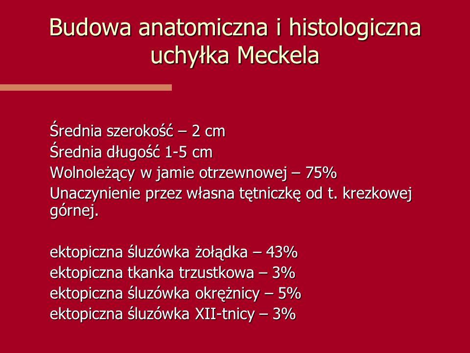 Budowa anatomiczna i histologiczna uchyłka Meckela