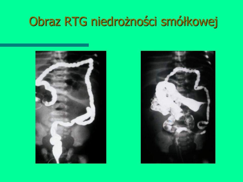 Obraz RTG niedrożności smółkowej