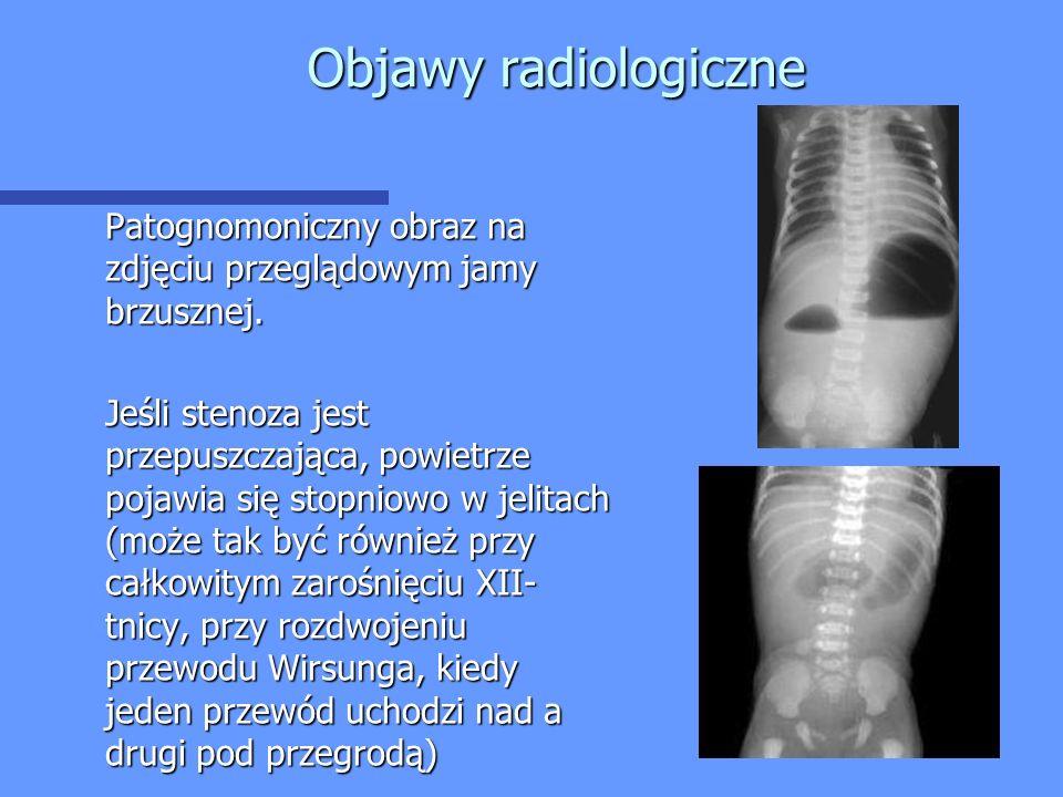 Objawy radiologiczne Patognomoniczny obraz na zdjęciu przeglądowym jamy brzusznej.