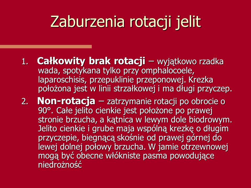 Zaburzenia rotacji jelit