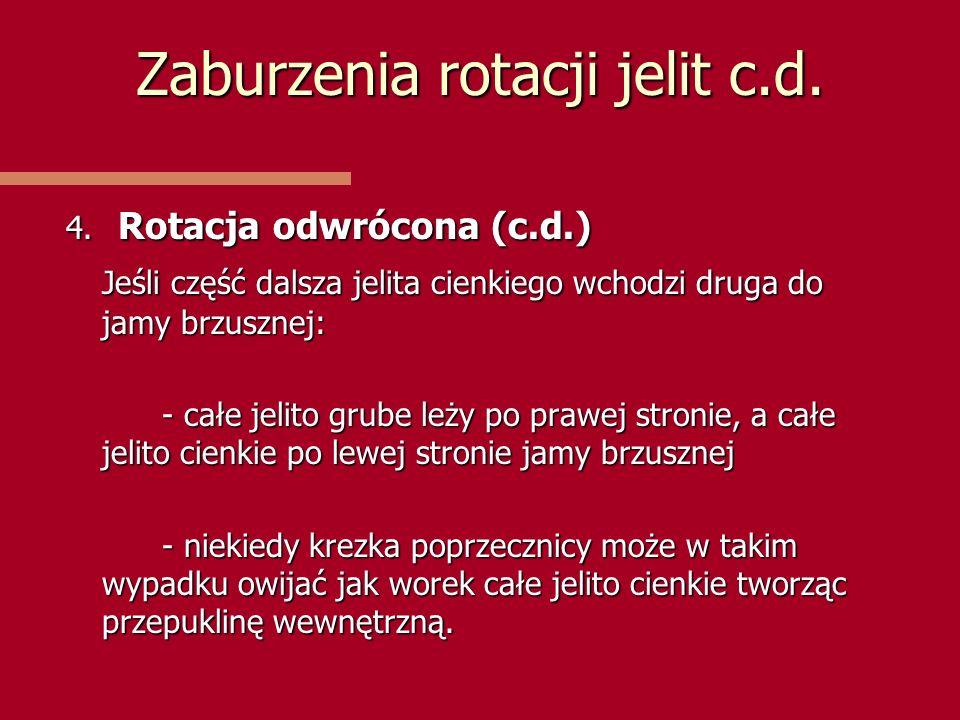 Zaburzenia rotacji jelit c.d.
