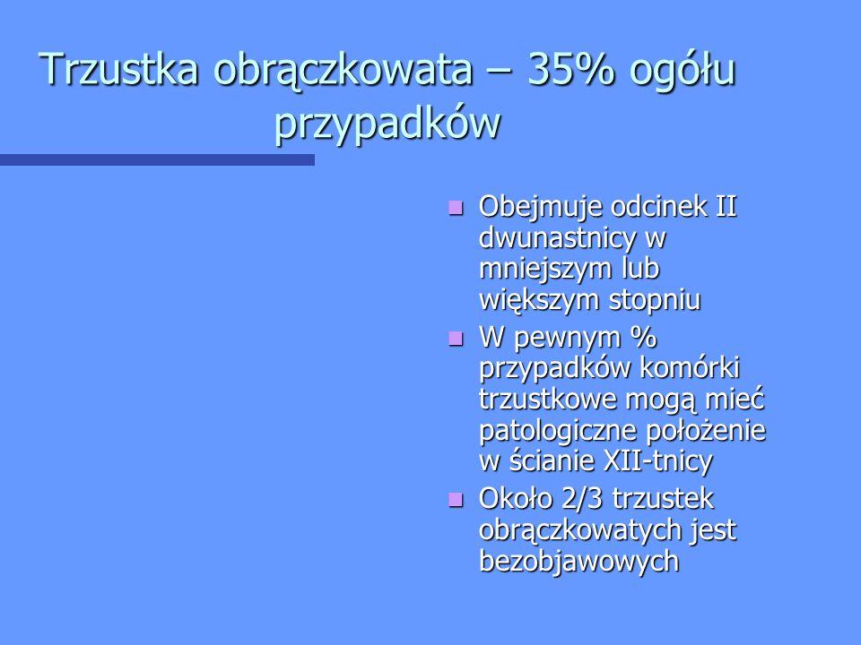 Trzustka obrączkowata – 35% ogółu przypadków