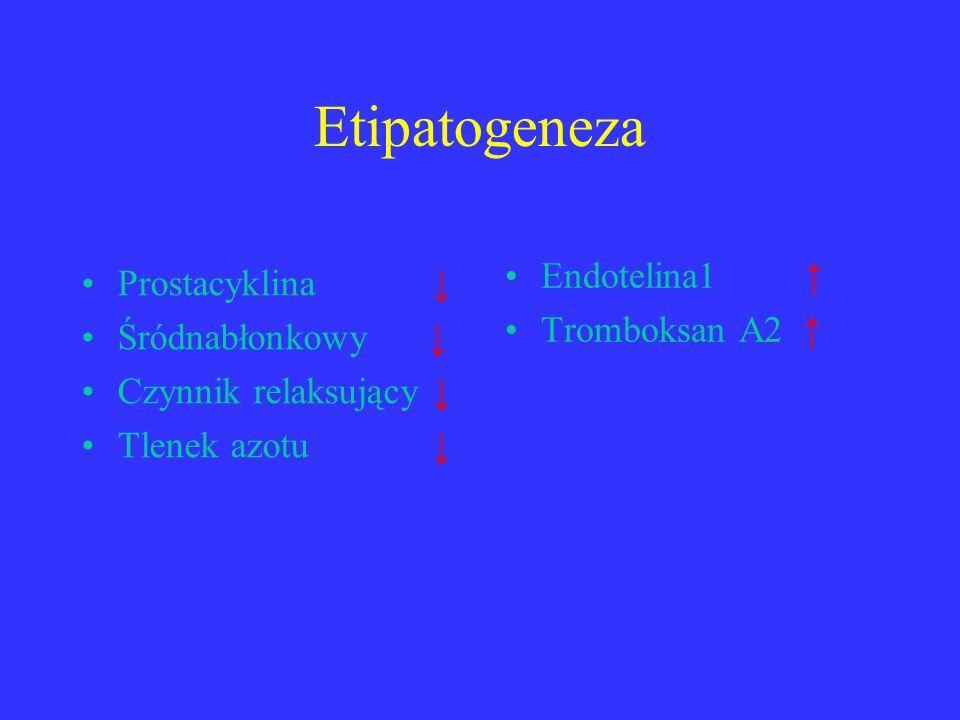 Etipatogeneza Endotelina1 ↑ Prostacyklina ↓ Tromboksan A2 ↑
