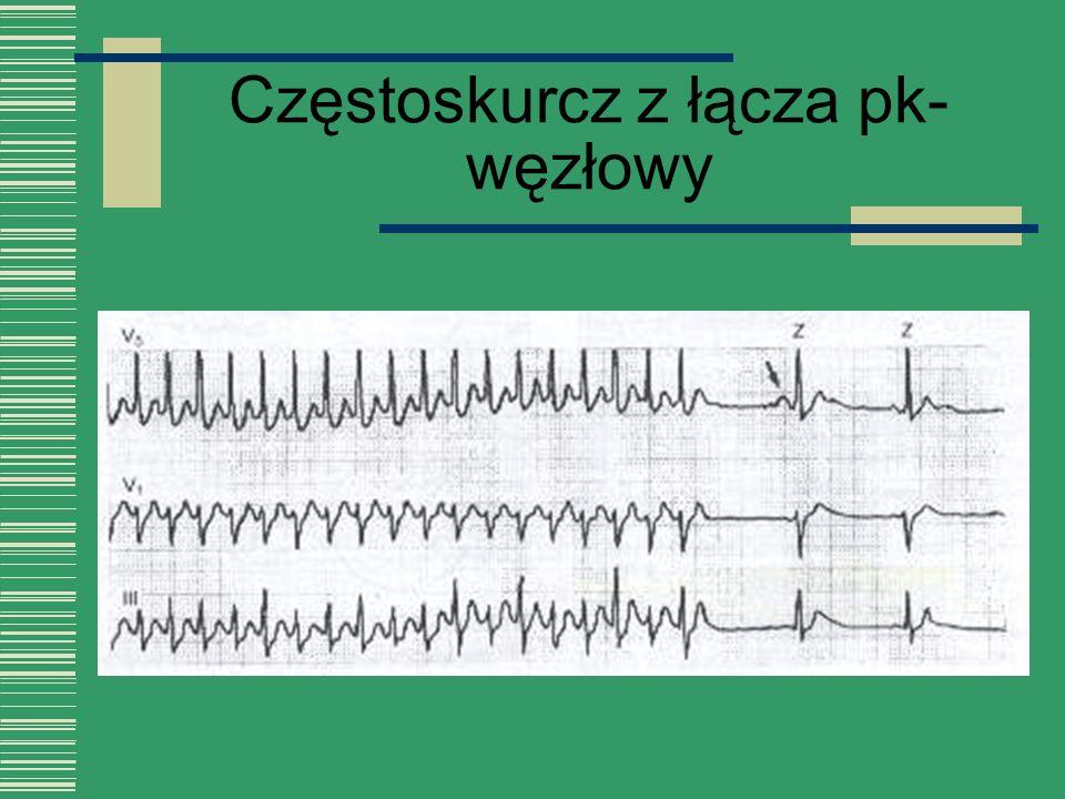 Częstoskurcz z łącza pk-węzłowy