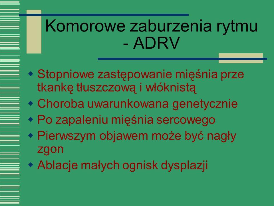Komorowe zaburzenia rytmu - ADRV