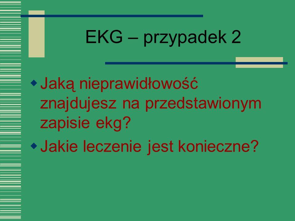 EKG – przypadek 2 Jaką nieprawidłowość znajdujesz na przedstawionym zapisie ekg.