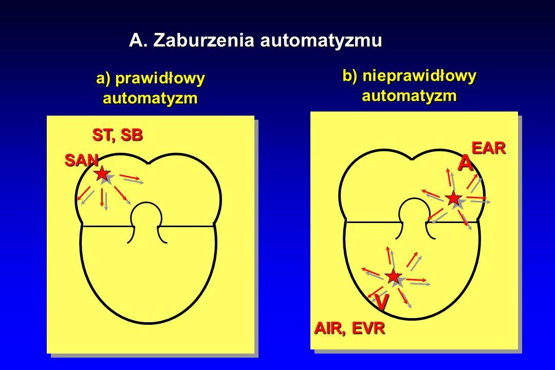 A V A. Zaburzenia automatyzmu b) nieprawidłowy a) prawidłowy