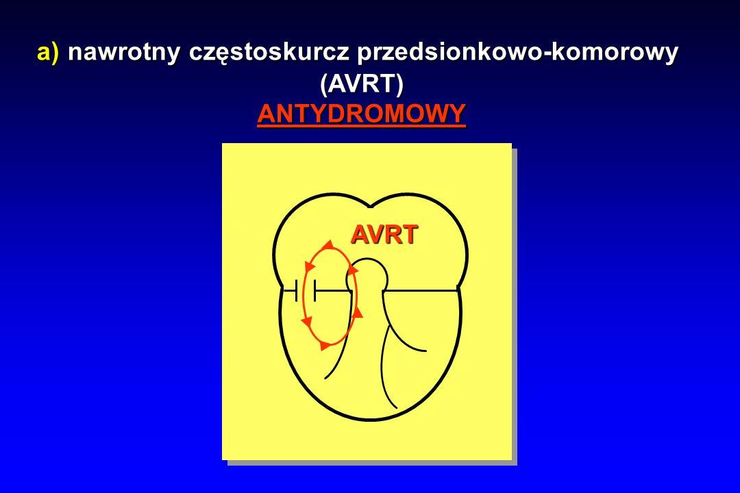 a) nawrotny częstoskurcz przedsionkowo-komorowy