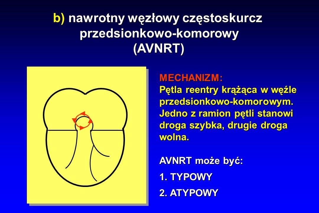 b) nawrotny węzłowy częstoskurcz przedsionkowo-komorowy
