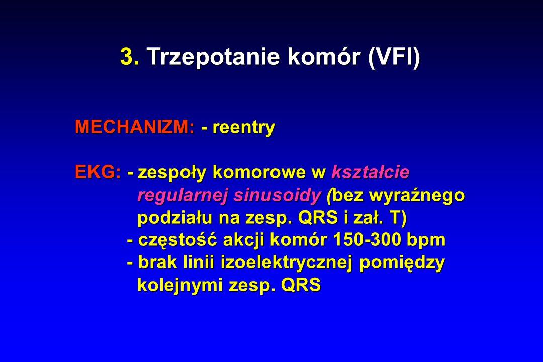3. Trzepotanie komór (VFl)