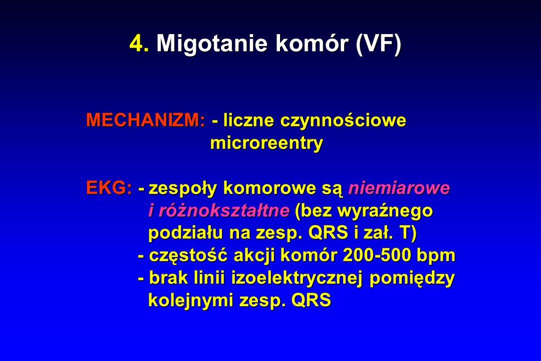 4. Migotanie komór (VF) MECHANIZM: - liczne czynnościowe microreentry