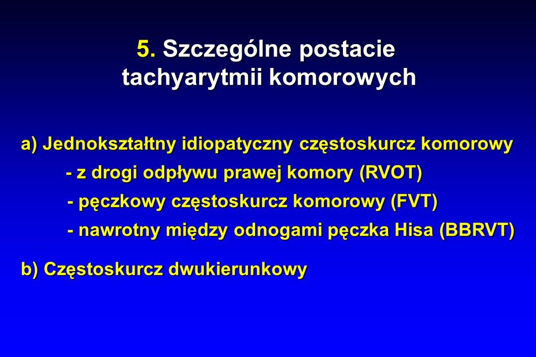 tachyarytmii komorowych