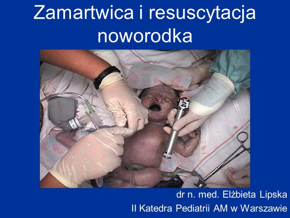 Zamartwica i resuscytacja noworodka